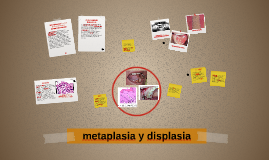 metaplasia y displasia