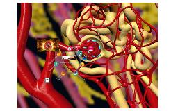 Daño vascular renal