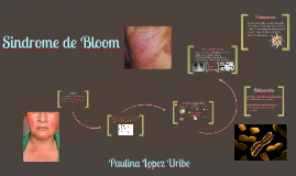 Sindrome de Bloom
