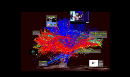 Lesson 2 Brain Plasticity