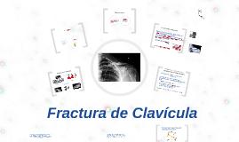 Fractura de Clavicula y su Rehabilitación