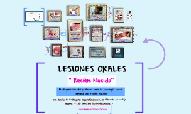 Copy of LESIONES ORALES