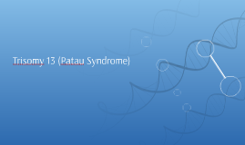 Trisomy 13 (Patau Syndrome)