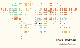 Global Burden of Down Syndrome