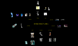 Bone fracture pictures (new version)