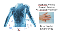 Copy of Psoriatic Arthritis by Ahmad Saad on Prezi