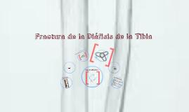 Copy of Fractura de la diáfisis de tibia