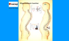 Hiperlordosis Lumbar