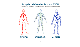 Physical Therapy with Peripheral Vascular Disease (PVD) patients.