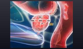 ¿Que es el cáncer a la próstata?