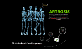 Copy of ARTROSIS!