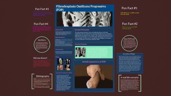 Fibrodysplasia ossificans progressiva (FOP) by Jacob Bernard