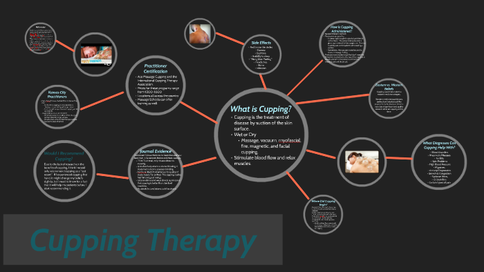Cupping Therapy by Sara Doll on Prezi