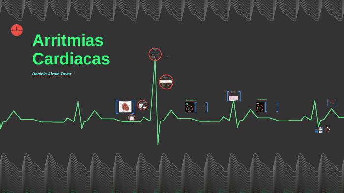 Arritmias Cardiacas by Daniela Alzate Tovar on Prezi