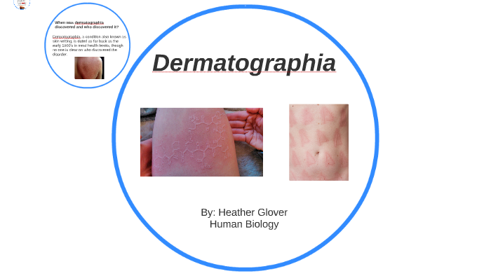Dermatographia by Heather Glover on Prezi