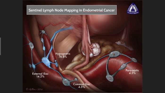 endometrial cancer lymph nodes