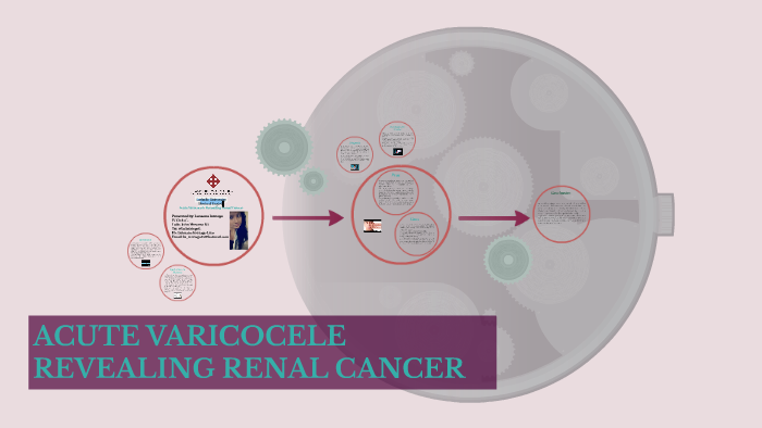 Acute Varicocele Revealing Renal Cancer By Luissana Intriago Lino On Prezi Next