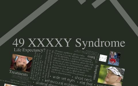 Xxxxy Syndrome 49 XXXXY Syndro...