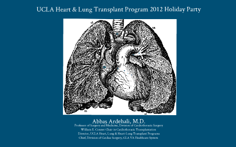 Heart & Lung Transplant Program 2012 Holiday Party