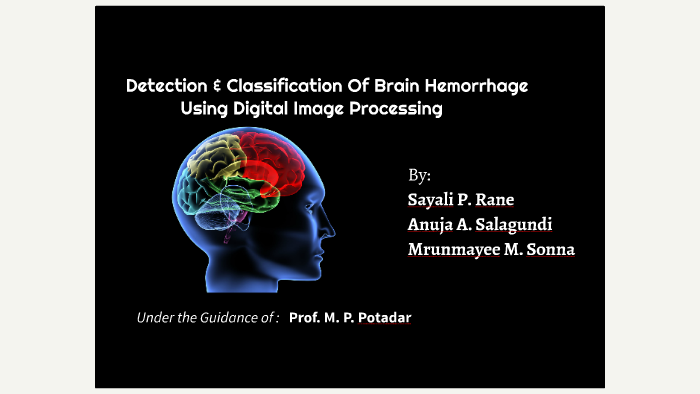 BRAIN HEMORRHAGE by Sakshi Patil on Prezi