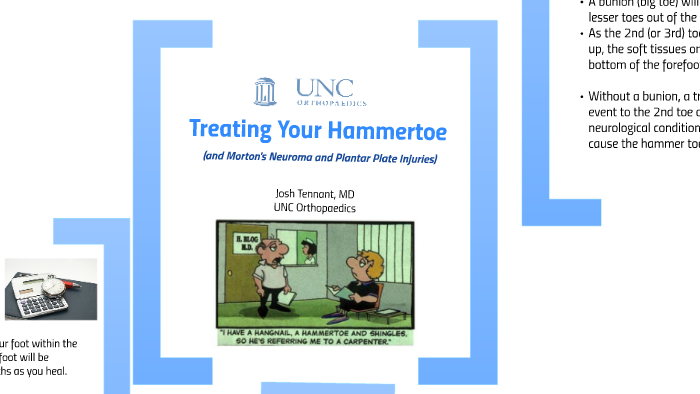 Hammertoe Treatment by Joshua Tennant on Prezi