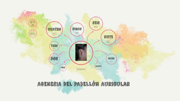 agenesia de pabellón auricular