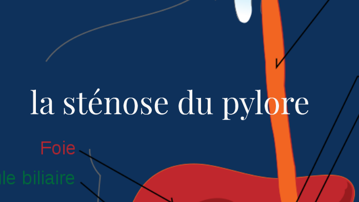 la stenose du pylore by francesca reggidori on Prezi