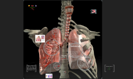 Copy of Trabajo Embolia Pulmonar