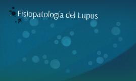 Patogenia del Lupus