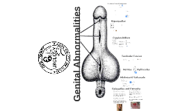 Copy of Copy of Genital Abnormalities