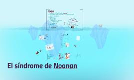 El síndrome de Noonan