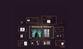 Artrosis de Muñeca