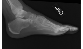 SM III-The Foot