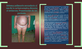 Eritema polimorfo secundario al uso de la carbamazepina dura