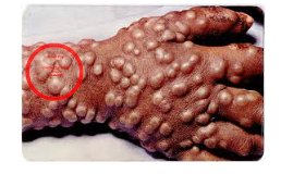 small pox in depth