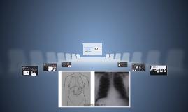 "Posicionamiento radiográfico ""Tórax"""