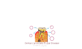 Artigo Dental Caries and Pulpal disease