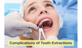 Complications of Tooth Extractions
