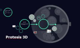 Protesis 3D