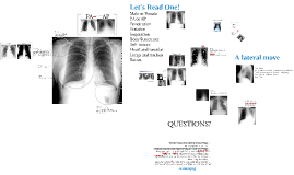 Copy of Copy of Copy of Chest Xray Basics