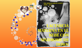 LACTANCIA MATERNA Y SINDROME DE DOWN
