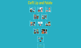 CLeft Lip and Palate
