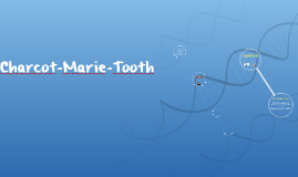 Charcot-Marie-Tooth