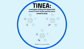 Copy of Tinea