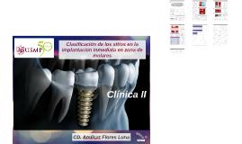 Clasificación de los sitios de extracción de molares Inmedia