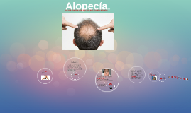 Alopecía.