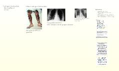 Findings of Endocarditis